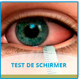 Test de Schirmer